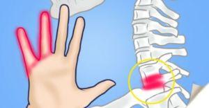 Симптомы онемения рук