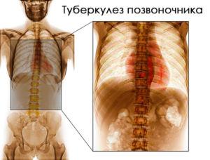 Туберкулез костей
