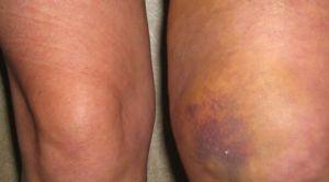 Ушиб колена - травма мягких тканей