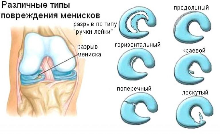 Типы травм мениска