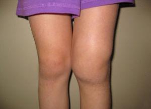 Признаки реактивного артрита у детей