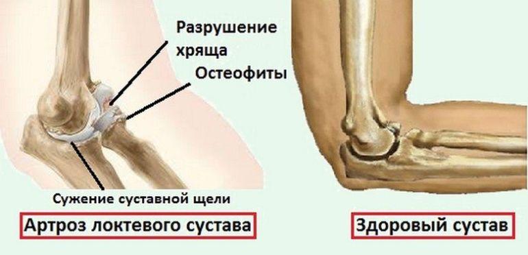 Признаки артроза локтевого сустава