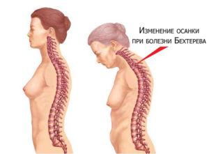 Симптомы спондилита у женщин