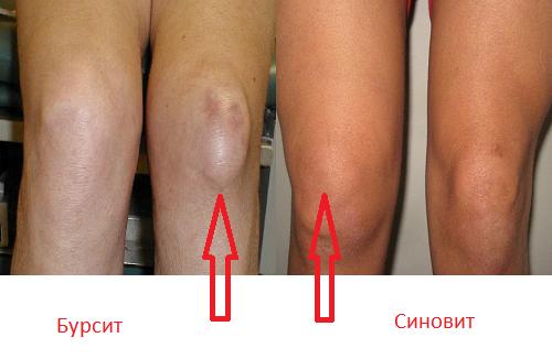 Можно ли вылечить синовит коленного сустава травма кистивого сустава