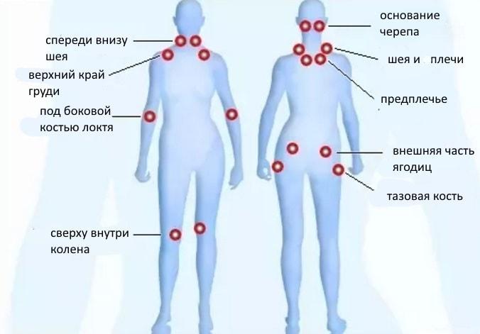 Точки триггеры при фибромиалгии