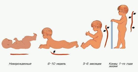 Формирование физиологического лордоза
