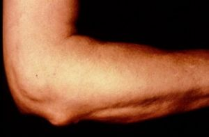 Хондрокальциноз локтя
