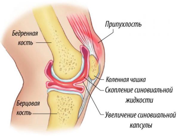 Развитие синовита коленного сустава