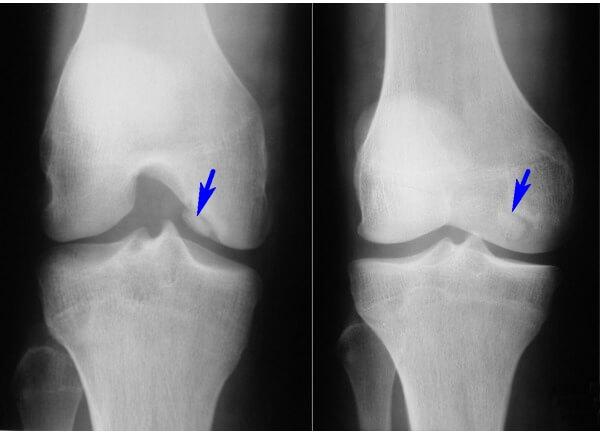 Асептический некроз колена