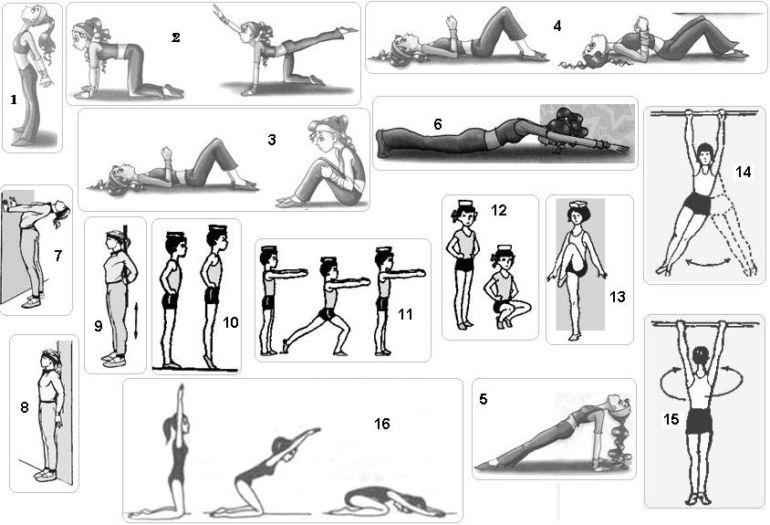 Физкультура при сколиозе