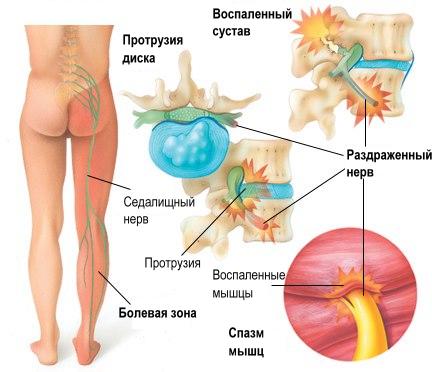 Люмбаго вызывает боли в мышцах