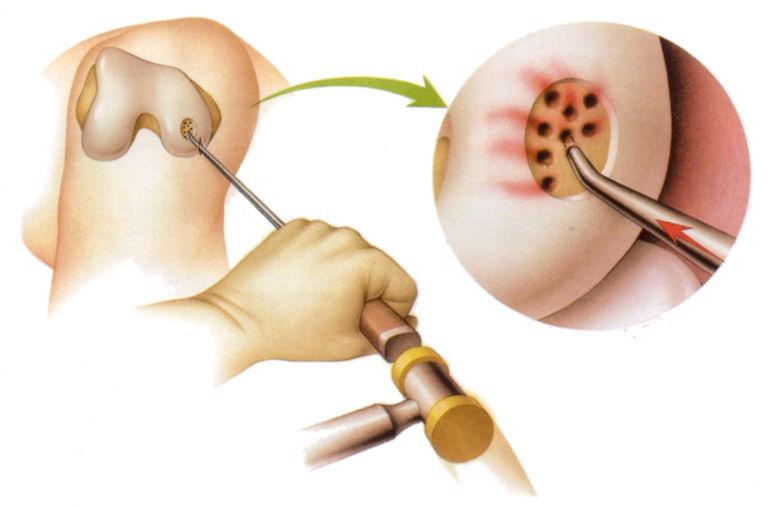 Хондропластика сустава
