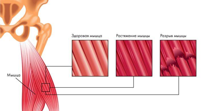 Степени тяжести повреждения мышц