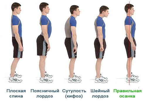 Разные виды изгибов спины