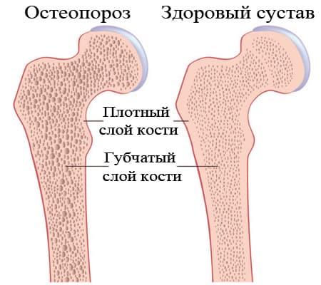 Остеопороз бедра