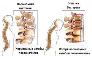 Синдром Бехтерева