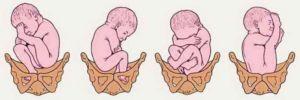Изображение - Дисплазия суставов у новорожденных ребенка predlezganie-300x100