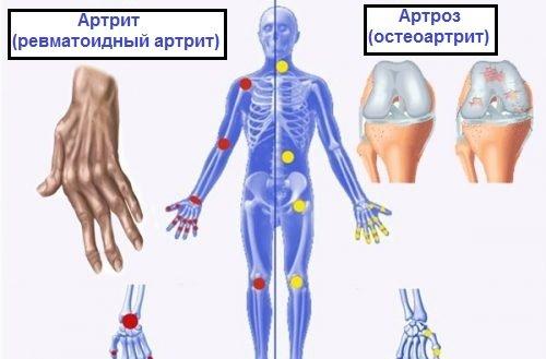 Симптомы артрита