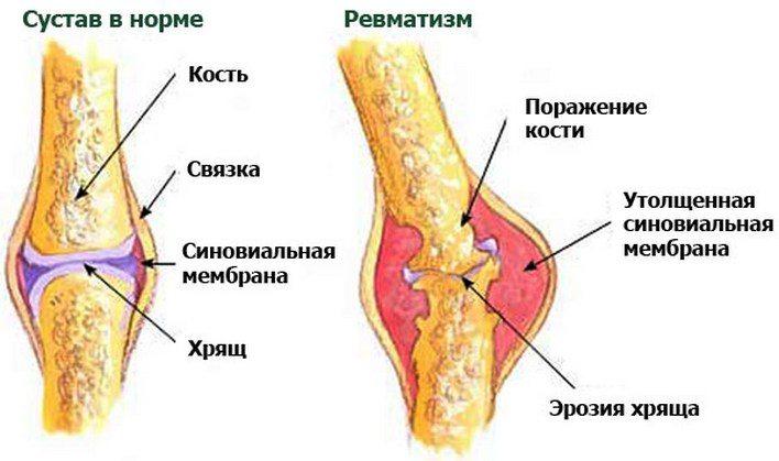 Развитие ревматизма суставов