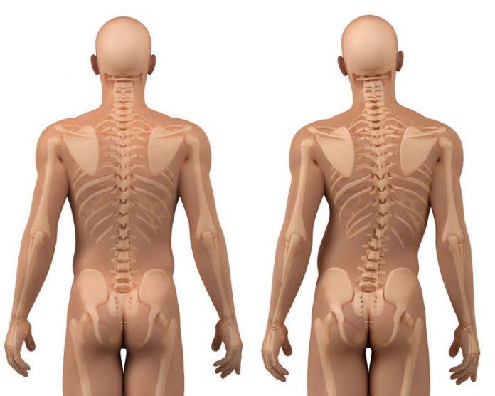 Симптомы сколиоза и его степени
