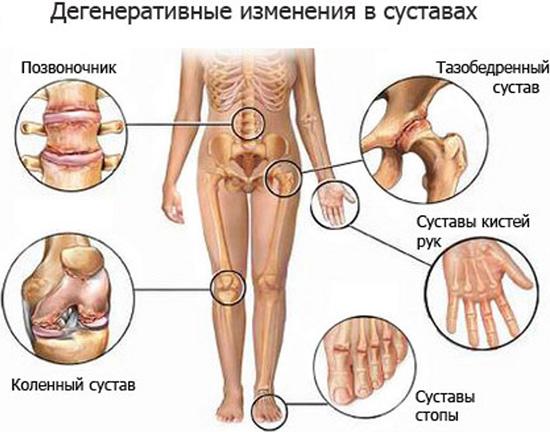 Формы болезни Бехтерева