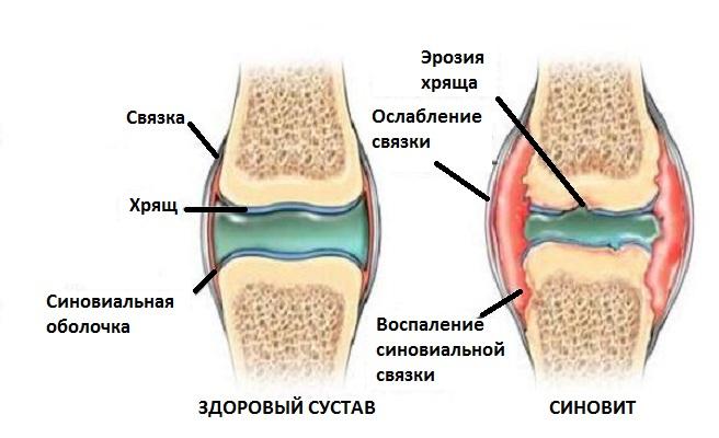 Капустный лист при синовите суставо узи мягких тканей коленного сустава