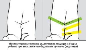 Изображение - Дисплазия суставов у новорожденных ребенка skladki-300x177