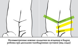 Симметрия складок