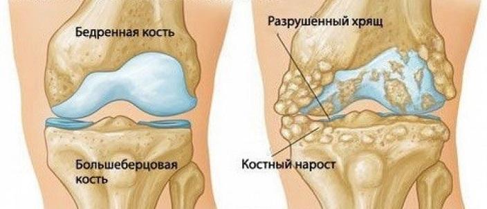 Развитие остеосклероза костей