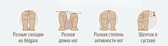Признаки дисплазии тазобедренного сустава