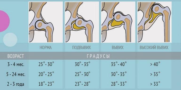 Изображение - Дисплазия суставов у новорожденных ребенка tablica
