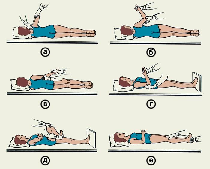 Упражнения для восстановления после парез
