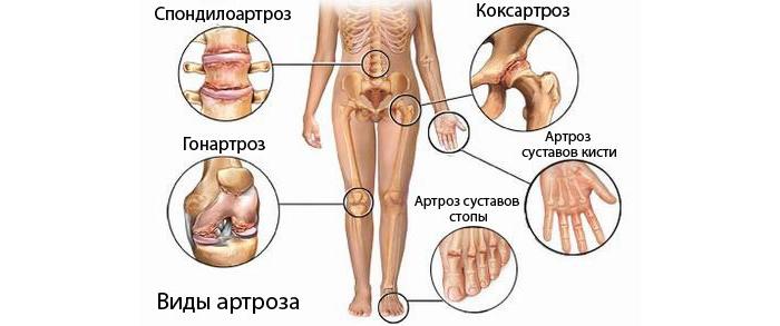 Виды артрозов суставов