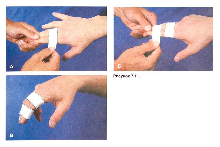 Фиксация ушибленного пальца
