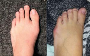 косточки на мизинце ноги