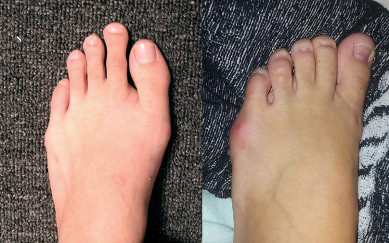 Операция по удалению косточки на ноге обзор новейших методов хирургии