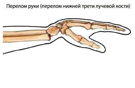 Перелом руки в «типичном месте»