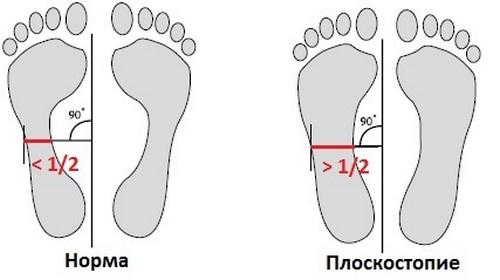 Определение плоскостопия дома