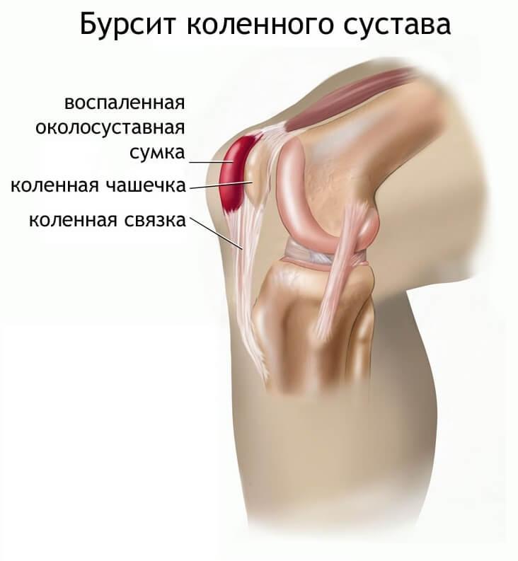 Бурсит коленного сустава
