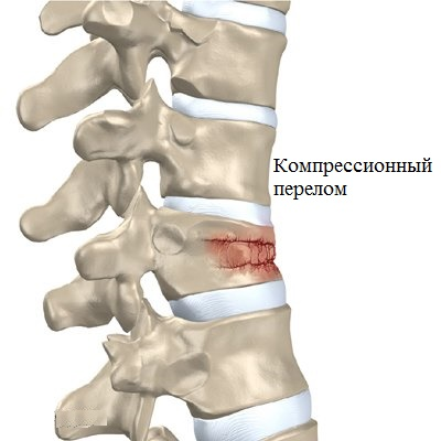 Признаки компрессионного перелома