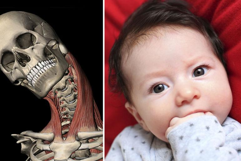 Узи тазобедренных суставов у новорожденных расшифровка