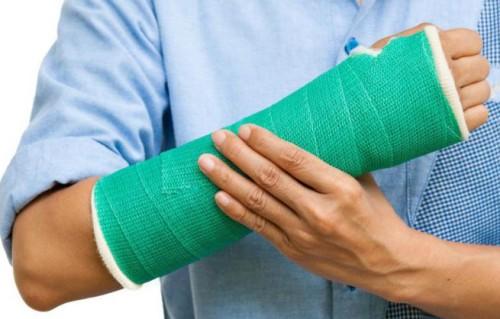 Как распознать перелом ключицы и чем его лечить