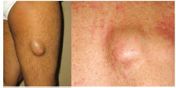 Опухоль на голени