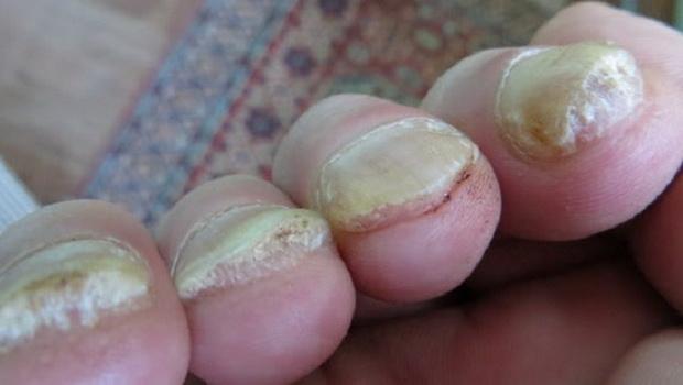 Нарост под ногтями