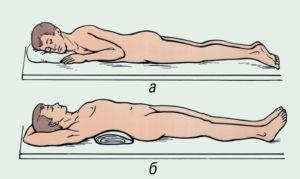 Положение при переломе позвоночника