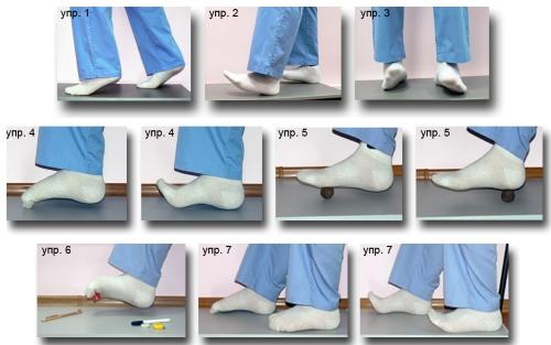 Упражнения при поперечном плоскостопии