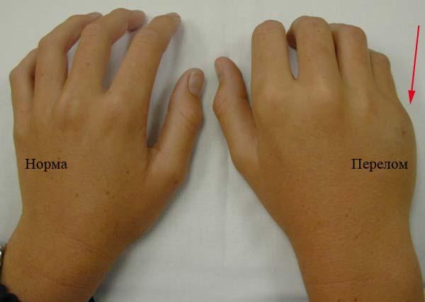 Симптомы перелома кисти