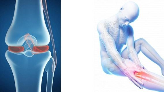 Мениск коленного сустава симптомы и лечение повреждения