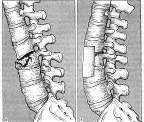 Признаки перелома позвоночника
