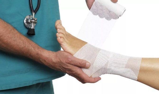 Разрыв связок на ноге лечение